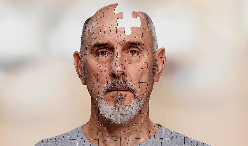 Таинственный мистер Альцгеймер